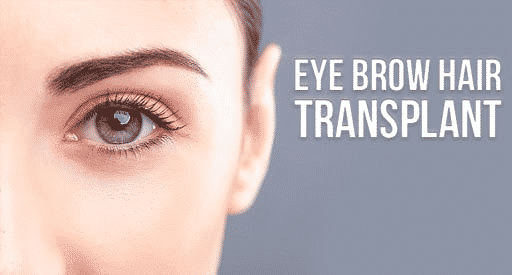 Eyebrow Hair Transplantation in Hyderabad, Hair growth specialist near me