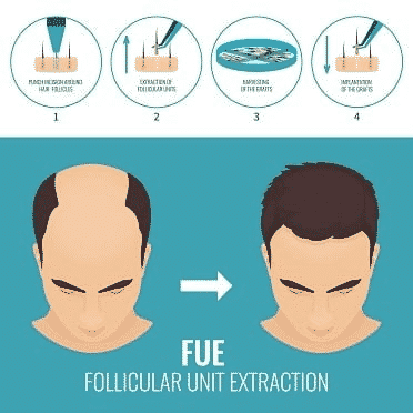 Follicular Unit Extraction treatment in Hyderabad, Hair specialist near me