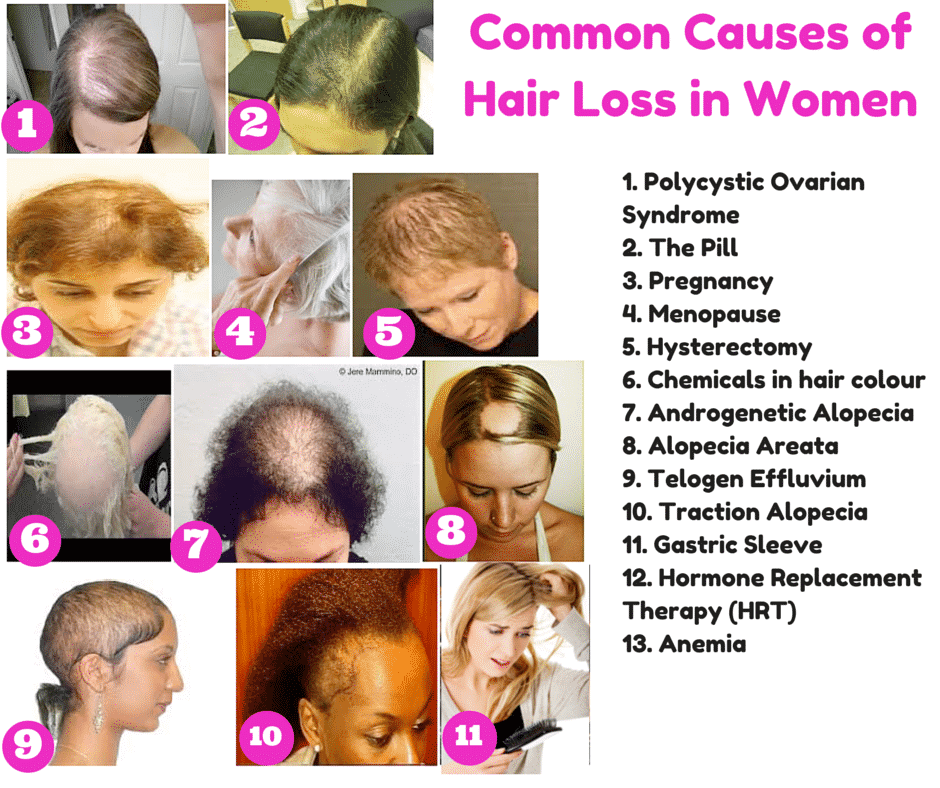 Common Causes of Hair loss in woment and its treatment in Hyderabad, Hair transplant clinic near me