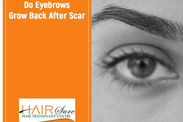 Eye brows restoration treatment in Hyderabad, best dermatologist for Hair loss near me