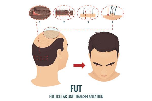 Follicular Unit Transplantation in Hyderabad, Hair fall specialist near me