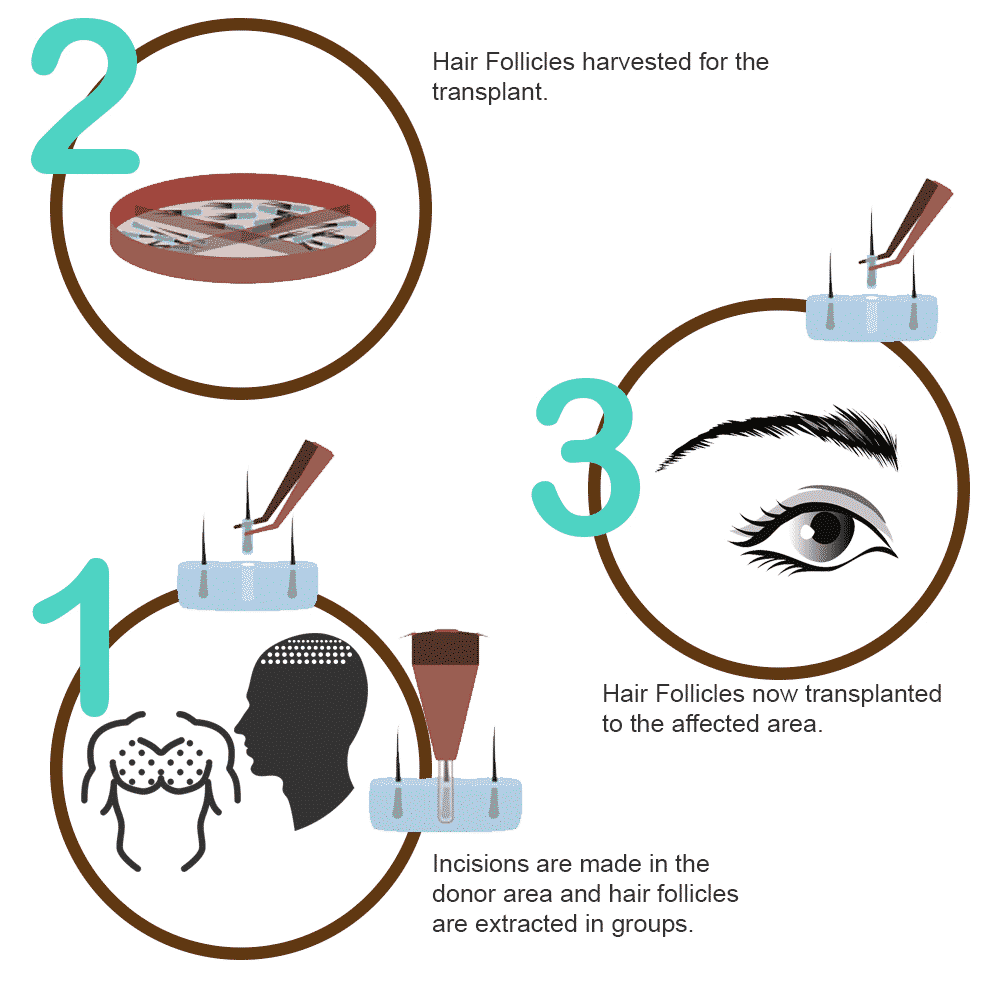 Eyebrow Hair Transplant in Hyderabad, Hair growth doctor near me