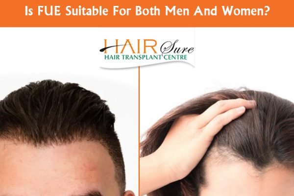 Best FUE Hair transplant for men and women in Hyderabad,Hair loss Doctor near me