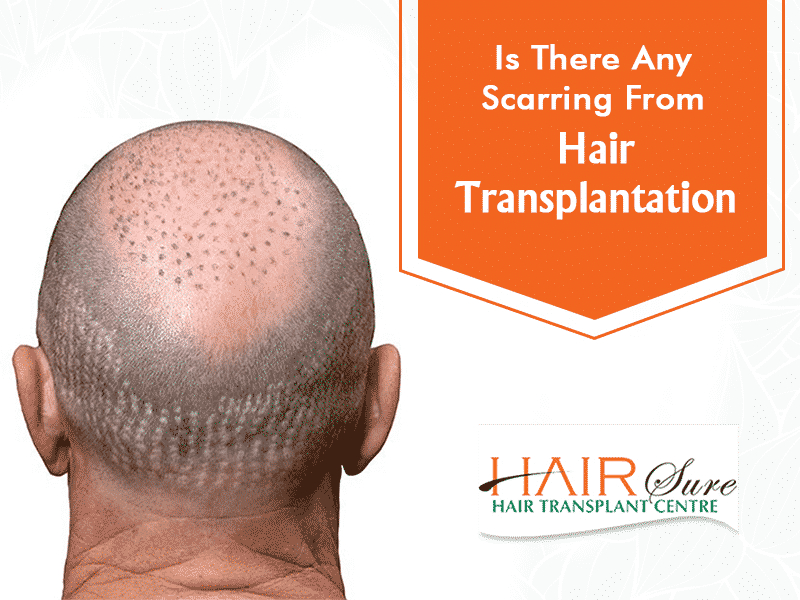Best Hair transplantation in Hyderabad,Hair specialist near me