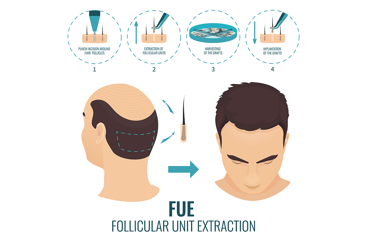FUE Hair Transplant in Hyderabad,dermatologist near me for Hair