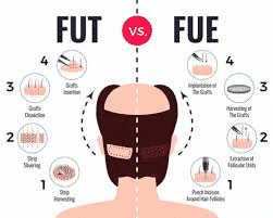 FUT and FUE clinical treatemnt procedure in Hyderabad,best Hair loss specialist near me