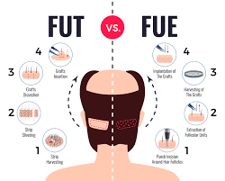Choosing The Right Hair Transplant Procedure from FUE and FUT in Hyderabad, Hair transplant specialist near me