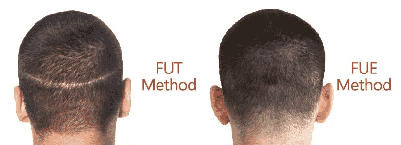 Best Hair treatment for FUE and FUT in Hyderabad, Hair doctor specialist near me