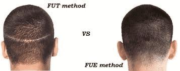 FUT vs FUE method treatment procedure in Hyderabad, Hair restoration doctor near me
