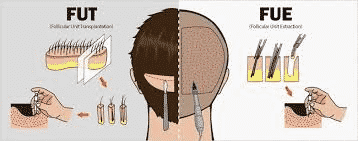 Best Treatment option for FUE and FUT in Hyderabad, scalp specialists near me