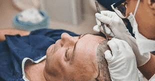 Scar management after Hair transplantation in Hyderabad, scalp specialist doctor near me