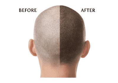 Best Hair Transplantation treatment for men in hydeabad, best Hair transplant doctors near me