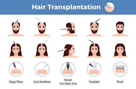 Different Hair transplant techniques in male and female in Hyderabad, Hair transplant doctors near me