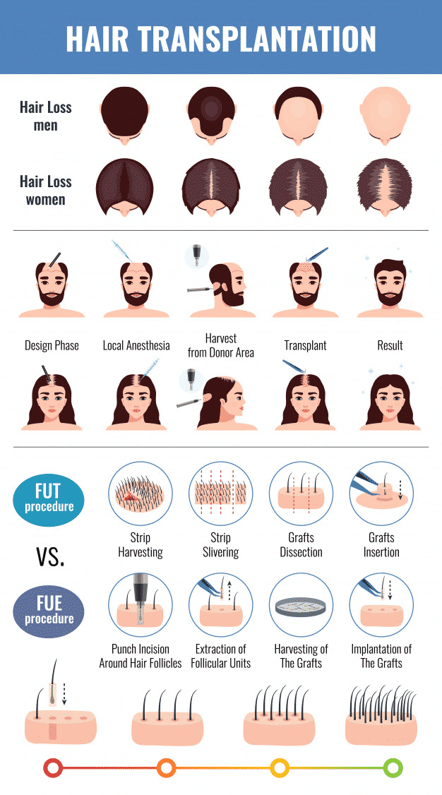Best Hair Transplantation Technique option for women in Hyderabad,Hair fall specialist near me