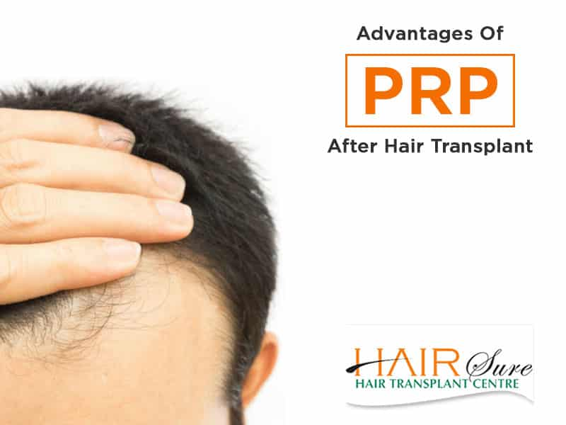 Benefits of PRP after Hair transplant by Hair sure clinic, one of the best Hair fall treatment clinic in Hyderabad