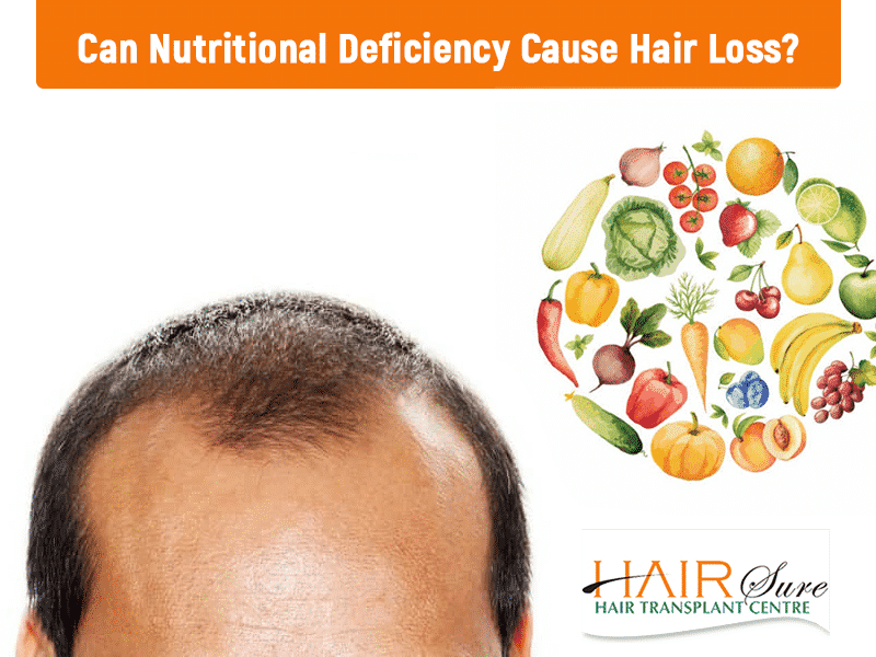 Nutritional deficiency causing Hair loss and its treatment in Hyderabad, Hair scalp specialist near me
