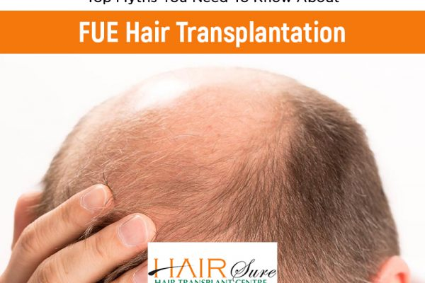 Myths and facts on Hair transplant by Dr.V. SHASHIKANTH, one of the best Trichologist in Hyderabad