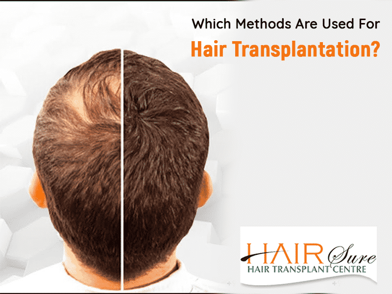 Which Methods Are Used For Hair Transplantation Hair Sure