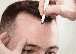 A hair transplant can give you permanent and natural-looking results at Hair sure clinic, One of the best Hair care centre in Hyderabad