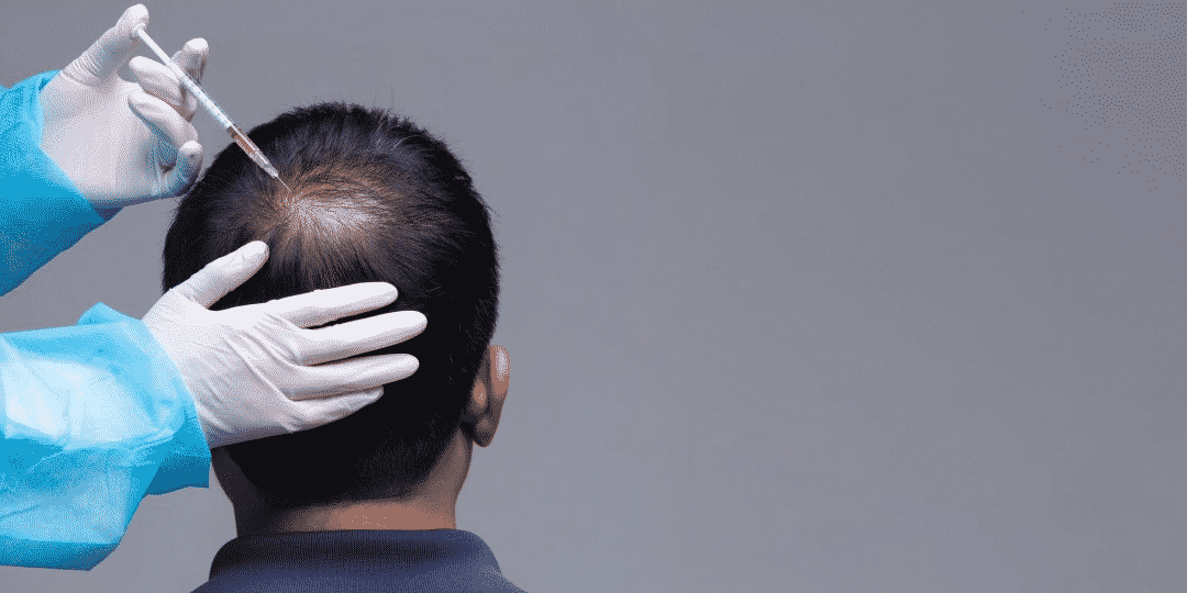when should i take PRP after Hair transplant in Hyderabad, best Hair doctor near me