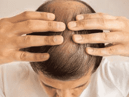 Best Hair loss treatment in Hyderabad, Hair specialist in near me