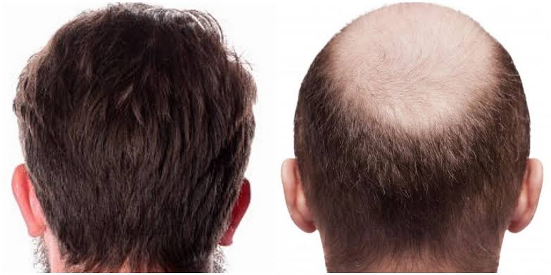 Best treatment for Hair transplantation in Hyderabad,Hair fall doctor near me