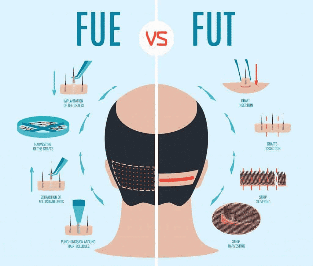 Best FUE and FUT Hair Transplant treatment Techniques in Hyderabad,good Hair specialist near me