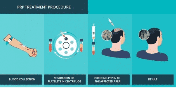 PRP treatment for Hair loss in Hyderabad, Hair specialist doctor near me