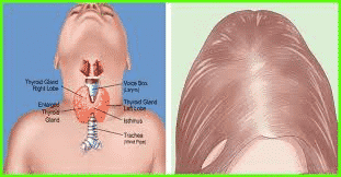Hormonal imbalanced Hair loss treatment in Hyderabad, Hair transplant specialist near me