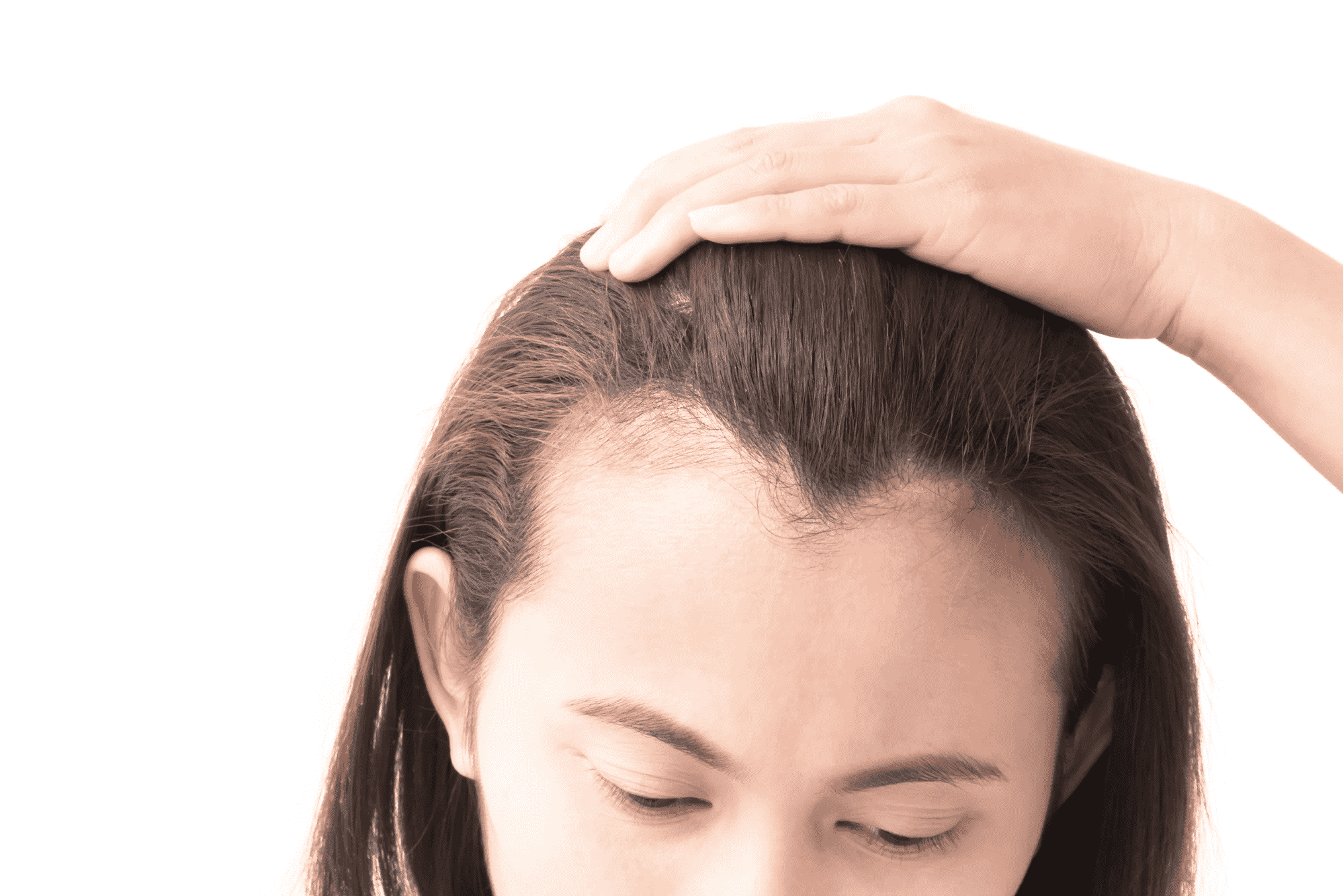 Best Hair transplant techniques used to create a Natural Hairline for females by Hair sure clinic, one of the best Hair speciality hospital in Hyderabad