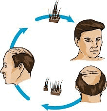 treatment for Hair loss and baldness in Hyderabad, best Hair loss specialist near me