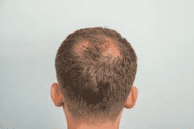 What Is The Best Age to Get a Hair Transplant Treatment by Hair sure clinic, one of the best hospital for Hair treatments in Hyderabad