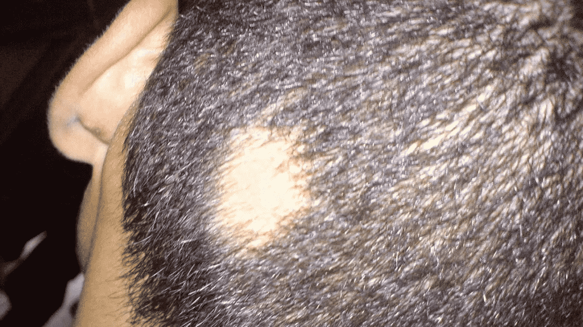 fungal infection on scalp Hair loss treatment in Hyderabad, thinning Hair specialist near me