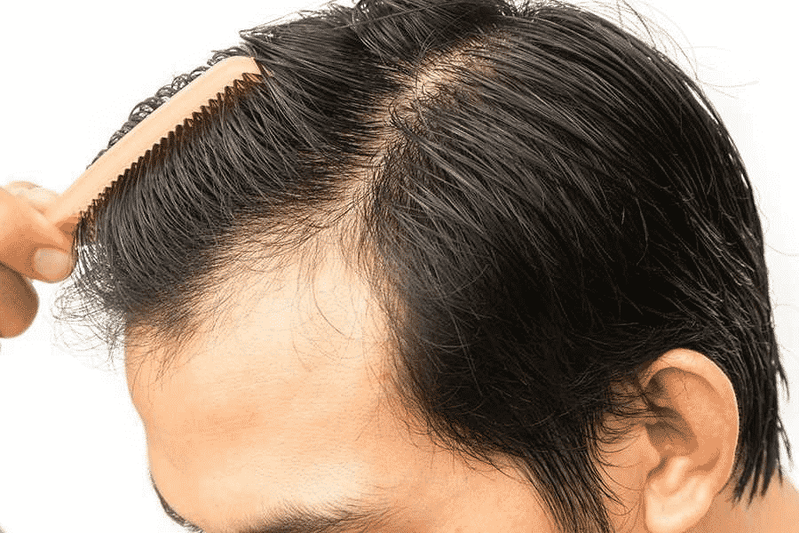 Promote and enhance tissue repair and healing in Hyderabad, Hair color specialist near me