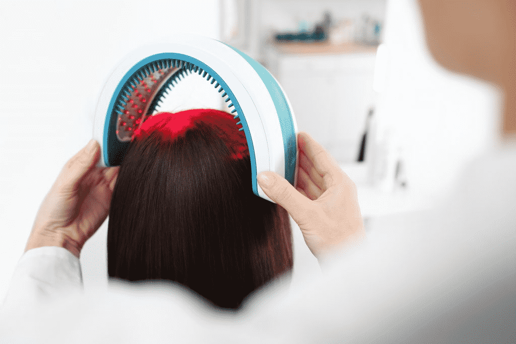 Laser therapy for Hair Transplant in Hyderabad,Hair clinic near me