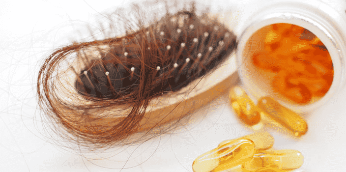 supplements for Hair loss in males treatment in Hyderabad, Hair problem specialist near me