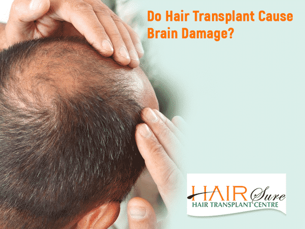 Does Hair Transplant Cause Brain Damage