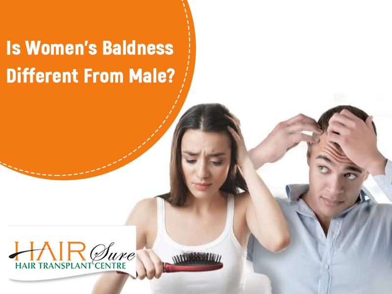 male-pattern baldness different from female-pattern, best clinic for Hair loss treatment in Hyderabad