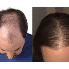 Best Hair loss treatment for male and female in Hyderabad, best trichologist near me