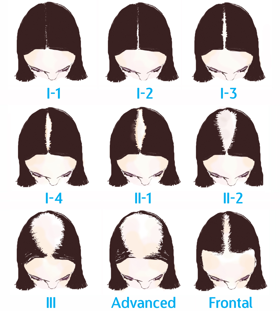 female pattern baldness treatment in Hyderabad, Hair loss specialist near me