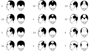 All types of Hair fall treatment for male by DR. S. P. PRAVEEN REDDY, one of the best Hair Transplant surgeon in Hyderabad