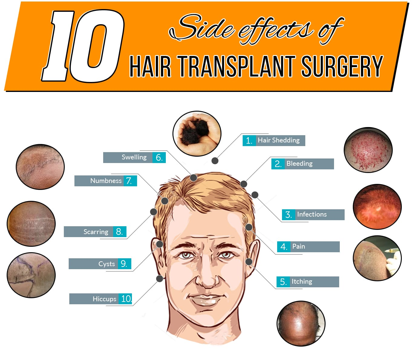 Are There Any Complications With Hair Transplantation?
