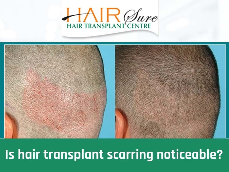 Best no scarring Hair Transplantation surgery in Hyderabad, hair speciality hospital near me