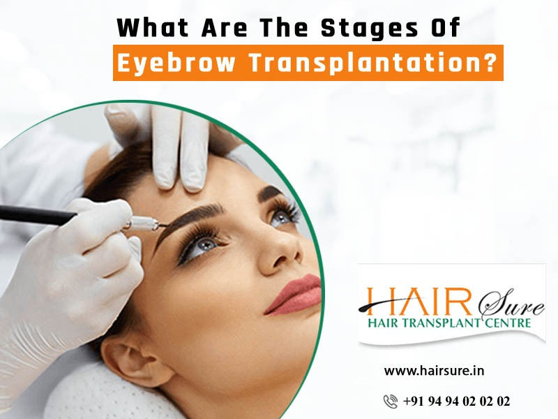 Best Hair Restoration techniques for Eyebrows at Hair Sure Clinic, One of the Best Hair Transplantation Centres in Hyderabad