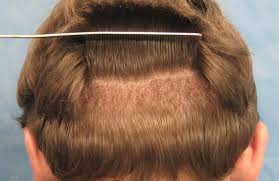 Best result Oriented Hair Transplant clinic in Hyderabad, Hair Sure is one of the best hair care treatment Hospitals in Hyderabad