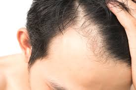 Contact Dr Sridhar Reddy to Know the time to return to work after hair restoration, One of the best Hair Transplant doctors in Hyderabad