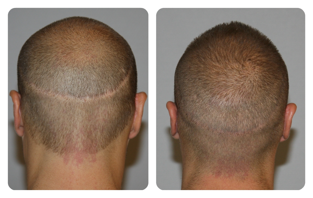 No scarring FUT hair transplantation surgery in Hyderabad, white hair specialist doctors near me