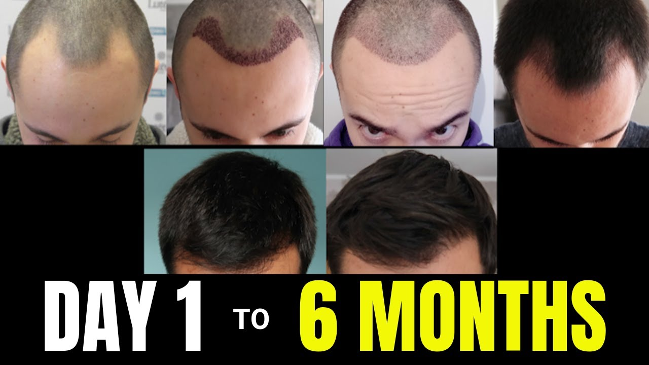 All You Need To Know About Hair Transplant Recovery time day 1 to 6 months at Hair Sure Clinic, One of the Best Hair Transplantation centres in Hyderabad