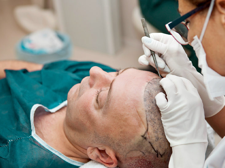 The best treatment for Baldness by Dr RAVI CHANDER RAO, One of the best hair transplant surgeons in Hyderabad