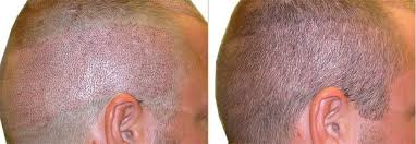 Get in touch with Dr Shashikanth for FUE Hair Transplantation, One of the best Hair Restoration specialists in Hyderabad